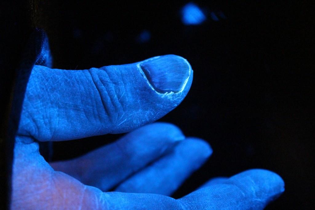 Spektakuläre Aufnahme: Mit dem UV-Floureszenznachweis gelingt es zu zeigen, wo nach dem Händwaschen noch Schmutz und Keime zurückbleiben - hier die weißen Rückstände am Nagelbett.